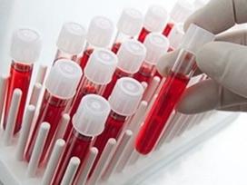 Hangi kan grubunun IQ'su daha yüksek?
