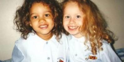 İkizler Neden Birbirine Benzemez