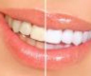 Süt Dişleri Hangileridir