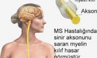 MS Hastalığı Nedir Belirtileri ve Tedavisi