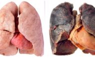 Sigara Akciğere Nasıl Zarar Verir