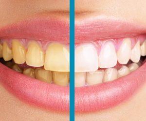 Dişler Neden Sararır