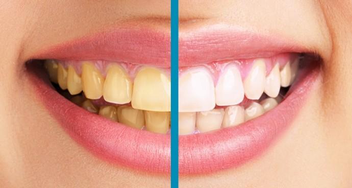 dişler neden sararır ile ilgili görsel sonucu
