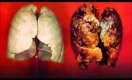 Sigaranın Zararları İle İlgili Sloganlar