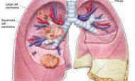Akciğer İle İlgili Sloganlar