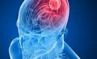 Beyin Ölümü Nedir Bitkisel Hayattan Farklı Mıdır?